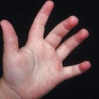 Menor de 4 años muere al clavarse varilla mientras jugaba
