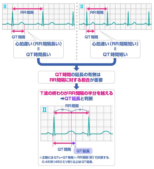 【第24回】速読式 QT延長推定と基礎疾患 | INFORMA byメディック ...