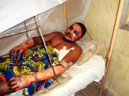 bomb-victim-emmanuel-bassey-severely-burnt-449x336