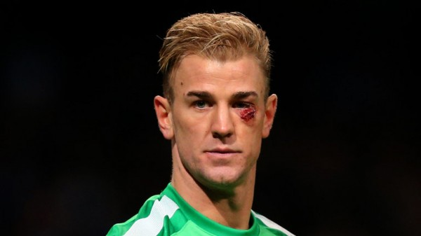 Joe Hart Suffered a gash to His Face in Sunday's 1-0 Win Over Crystal Palace.