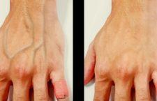 ¿Por qué las venas de algunas personas aparecen a través de su piel?