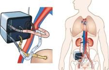 Un riñón biónico podría ser la solución a los problemas de trasplante y hemodiálisis