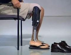 Próteses para pessoas com deficiência serão fornecidas pelo governo