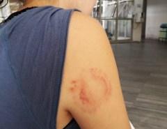 Ladrão morde mulher durante assalto em Natal; GPS localiza celular roubado e PM prende bandidos
