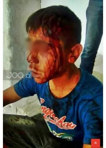 Durrës/ Një familje masakron të riun rom. Shkaqet nuk dihen.