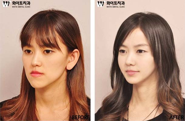 hasil pembedahan plastik wanita korea selatan
