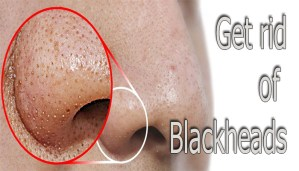 Blackheads treatment