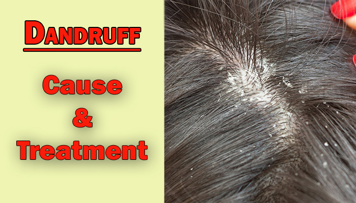 dandruff causes and treatment