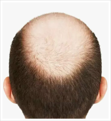 Natural Remedies To Treat Male Pattern Baldness