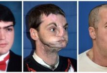 Photo of US man gets 'most extensive' face transplant ever