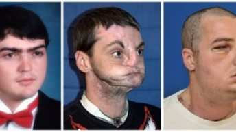 US man gets 'most extensive' face transplant ever 3