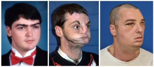 US man gets 'most extensive' face transplant ever 1