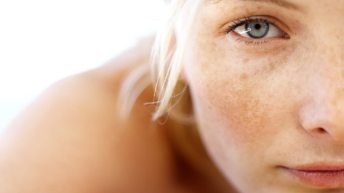 Top Ten Treatments for Sun Spot Removal 1