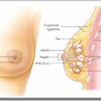Gejala Dan Penyebab Kanker Payudara