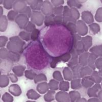 Jus Terapi Untuk Pengobatan Leukemia