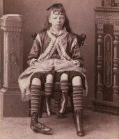 Цирк уродов: Страшное зрелище (фото)