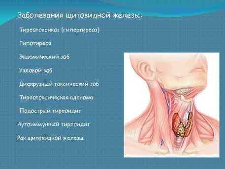 Проверить щитовидку - нужен только градусник