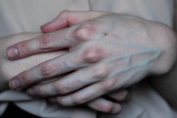 руки постоянно холодные