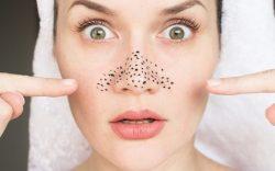 Черные точки на лице: почему они появляются. Причины возникновения и способы избавиться