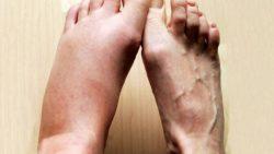 Почему отекают ноги: причины и как снять отек