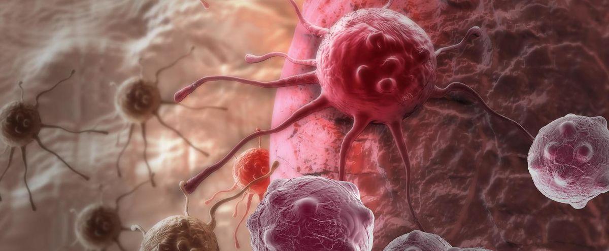 santé: 7 minutes pour comprendre le cancer de la prostate
