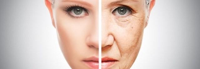 Image result for hyperpigmentation