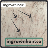 What does an ingrown hair look like?