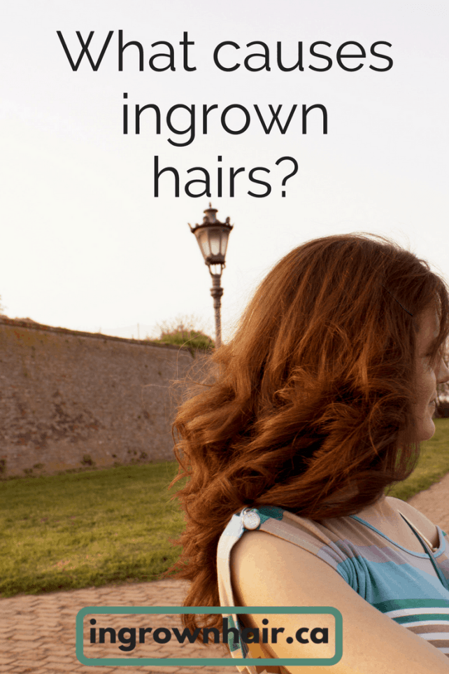 You might be surprised to find out what causes ingrown hairs!