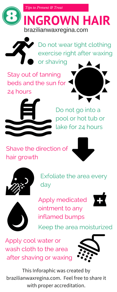 Learn how to prevent ingrown hairs by reading this great blog post