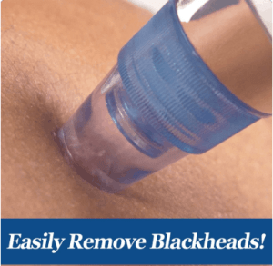The Blackhead sucker we are obsessed with.