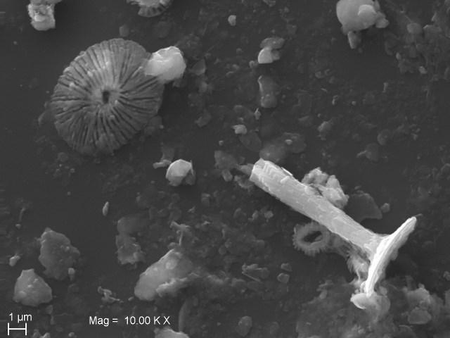 Nannoplancton calcareo: Rhabdosphera clavigera e Ubellosphaera tenuis, (SEM)