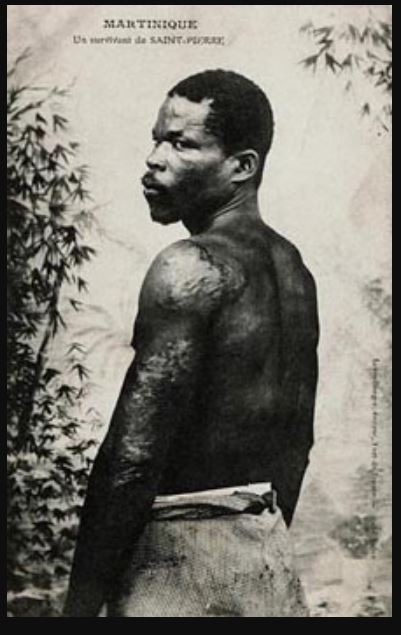 Stock photo of Auguste Cyparis prisoner of Martinique