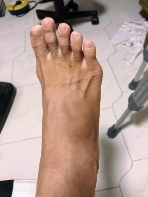 Redness and swelling on the top lateral side just above my ankle joint. This, plus pain in my ankle and metatarsal joints has been giving me a lot of pain and walking difficulties since it started 86 days ago.