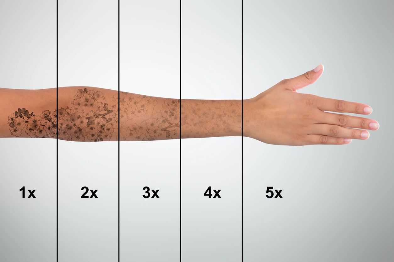 Tattoo removal on the hand