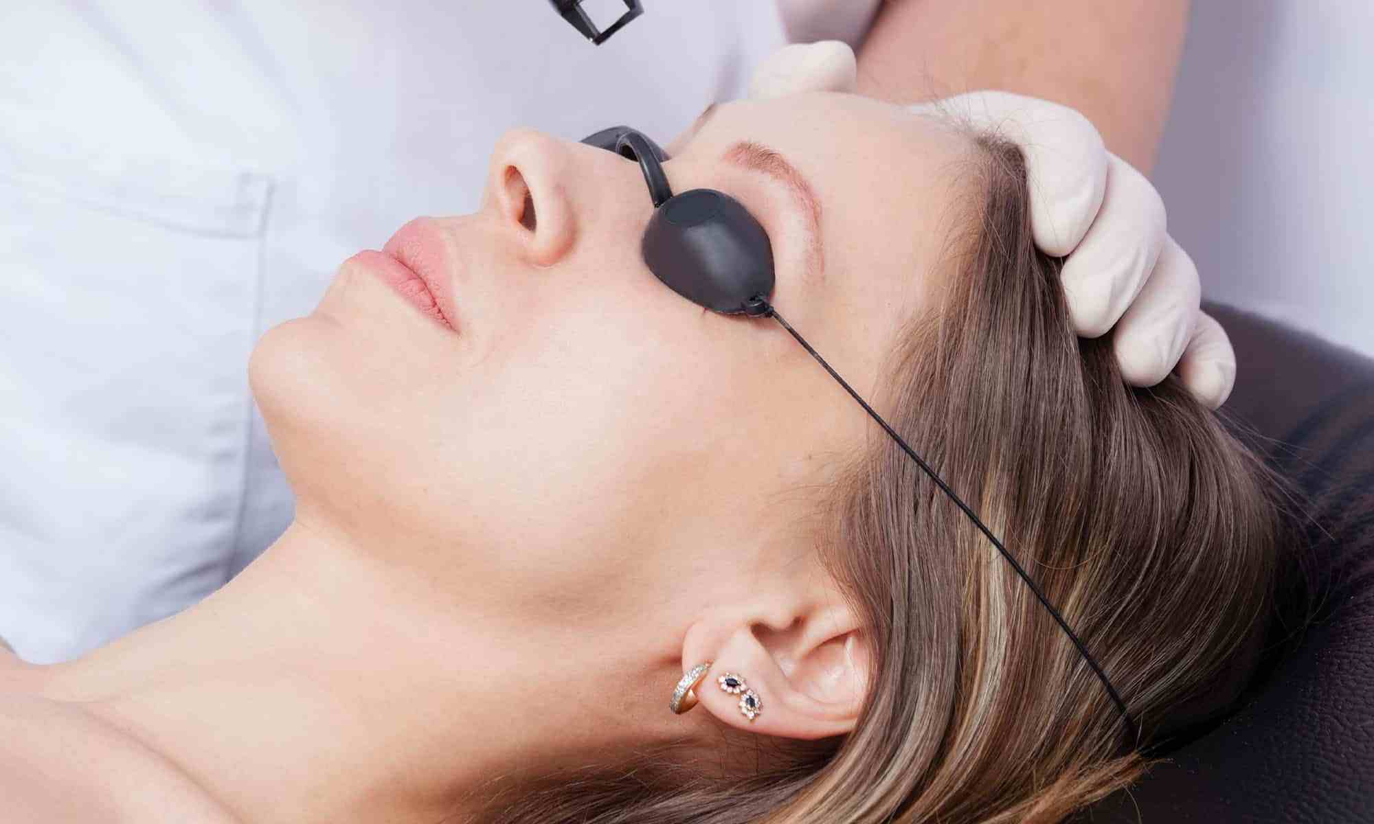 Ocular protection device for laser hair removal on the face