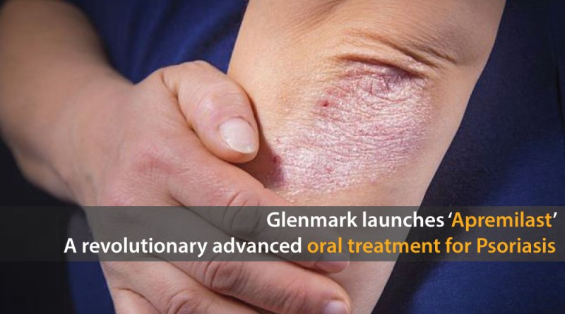 Glenmark-Launches-'Apremilast'-A-Revolutionary-Advanced-Oral-Treatment-for-Psoriasis