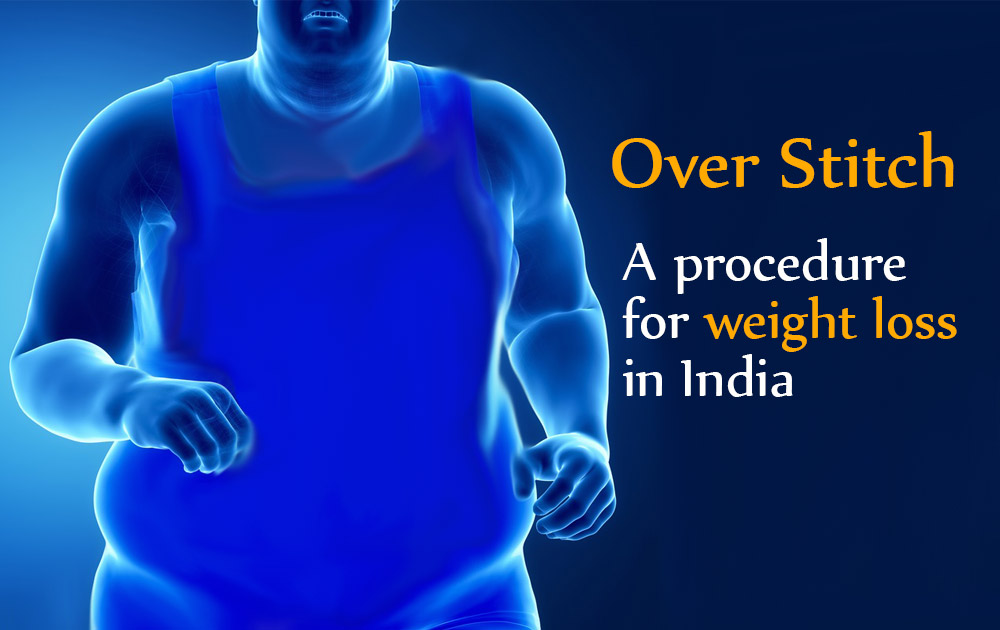 Over stitch – weight lose device