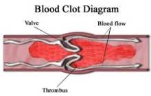 New FDA-Approved Clot Removal Devices Show Promise for Treating Stroke Patients