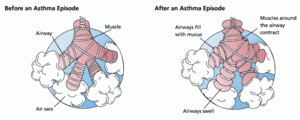 300px-Asthma_before-after (1)