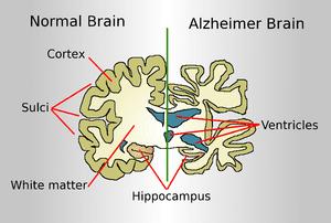 300px-Brain-ALZH