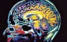 Neural prosthesis restores behavior after brain injury