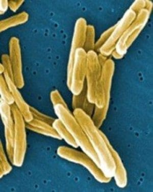 Mycobacterium tuberculosis and other bacteria with growing resistance to current drugs are the targets of new research. Credit:National Institutes of Health