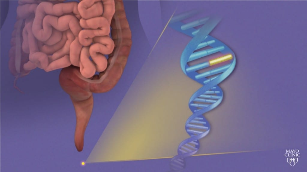 Mayo Clinic research results presented in NEJM could change colorectal screening practice