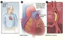 Johns Hopkins Scientists Alter Fat Metabolism in Animals to Prevent Most Common Type of Heart Disease