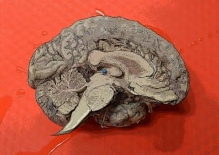 """Peggy Mason Self-proclaimed neuroevangelist Peggy Mason will lead a free, massively open online course on """"Understanding the Brain: The Neurobiology of Everyday Life,"""" starting Monday, April 28."""