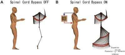 When turning off the computer-aided spinal cord bypass, the lower extremities which were in a relaxed state did not move even if the subject was swinging his/her arms. With the bypass turned on, when the subject swung his/her arms by his/her own will and a walking motion of the lower extremities began in rhythm to the motion of the arms. Credit: © Yukio Nishimura
