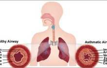 Airway muscle-on-a-chip mimics asthma