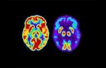 Alzheimer's breakthrough drug may'dramatically change' treatment