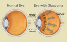 Herbal Supplement May Successfully Treat Glaucoma