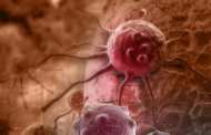 Scientists discover electrical control of cancer cell growth
